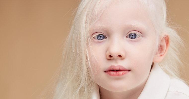 viziunea albinismului
