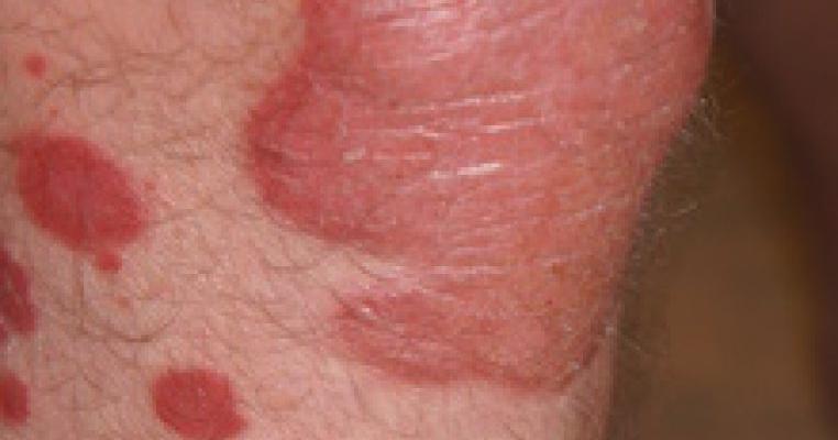 tratamentul yaroslavl pentru viermi hpv high risk dna positive