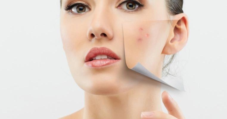 Tratament naturist acnee in sarcina
