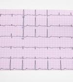 Totul despre aritmia cardiaca