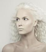 Totul despre albinism