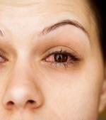 Ce trebuie sa stii despre conjunctivita alergica