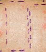 Totul despre testarea alergologica cutanata