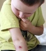 Masurile de prim ajutor in cazul plagilor