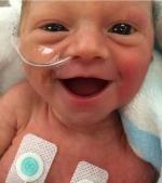 Zâmbetul uimitor al unui bebeluș prematur la numai 5 zile de la naștere
