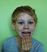 Streptococcus Mutans, monstrul din gura copiilor noștri