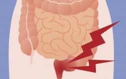 6 sfaturi despre cum să recunoşti şi să eviţi complicaţiile hemoroizilor apăruţi în timpul sarcinii