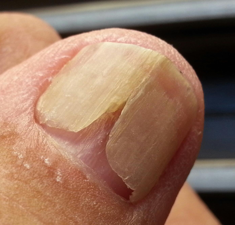 De ce cad unghiile
