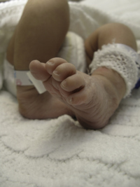 Control de rutina la bebelus prematur