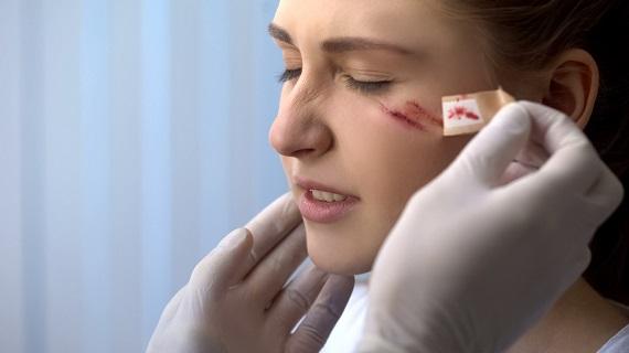 Fata care are niste rani pe față