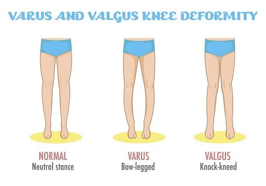 Picioarele prea arcuite pot fi un semn al deficientei de vitamina D la copil