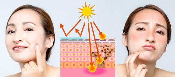 Modul in care expunerea la radiatiile solare poate afecta tenul