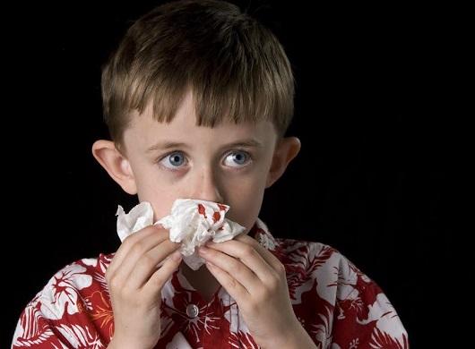 Copil caruia ii curge sange din nas