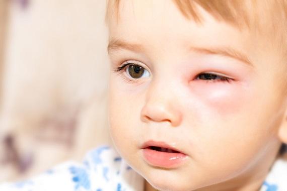 Copil ce este umflat la un ochi din cauza unei intepaturi de insecte
