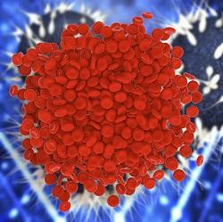 Vas de sange afectat de trombofilie