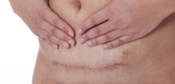 Dureri abdominale dupa cezariana