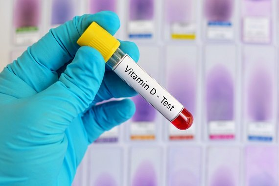 Analiza a sangelui pentru testarea nivelului de vitamina D
