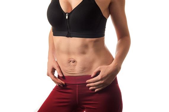 Femeie ce are pielea lasata in zona abdomenului