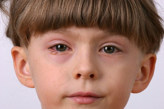 Copil cu ochii iritatii,lacrimosi si cu cearcane