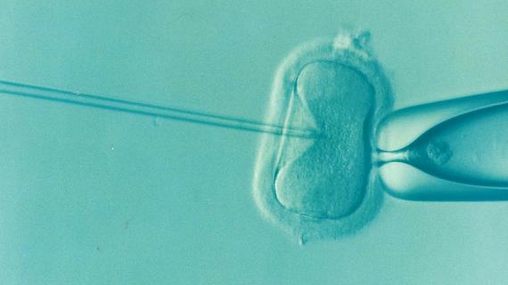 Tehnica de fertilizare in vitro
