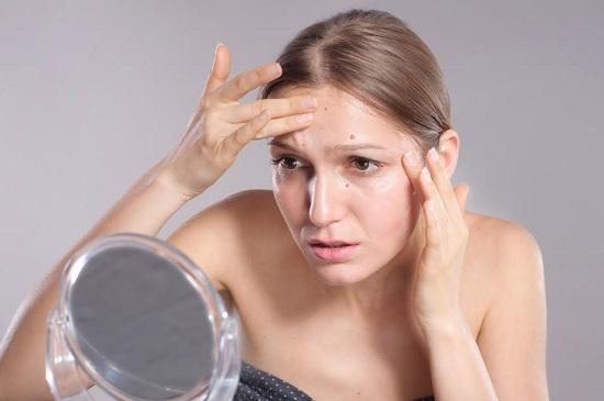 Femeie care este nemultumita din cauza acneei de pe frunte