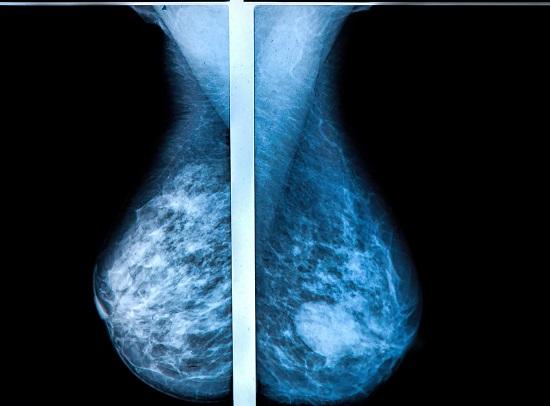 Sani vazuti la mamografie