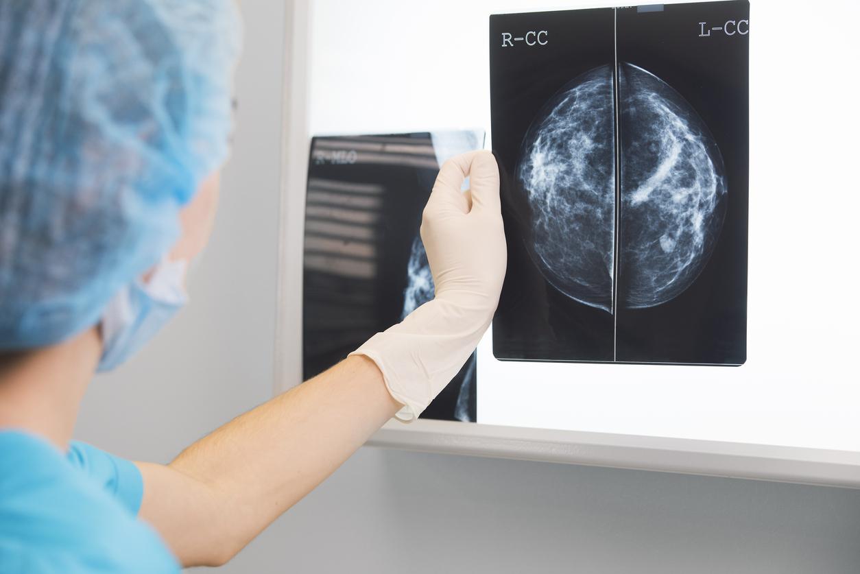 mamografie