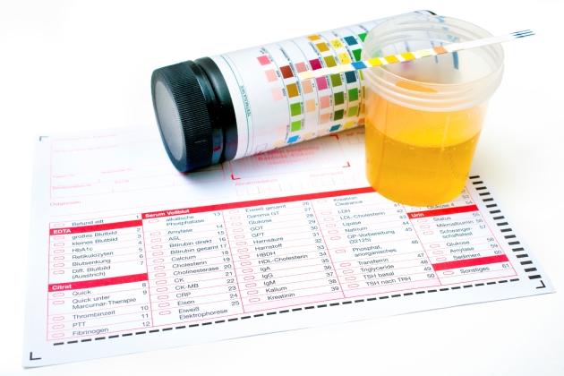Infectie urinara la copii