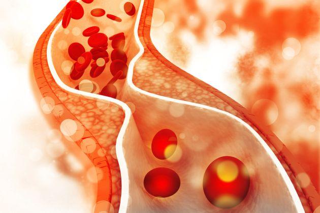 bolile sangelui