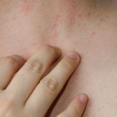 eczema copii