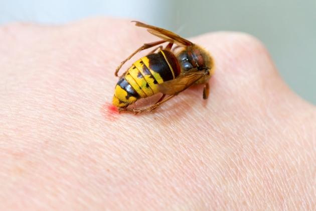 înțepătura de viespe