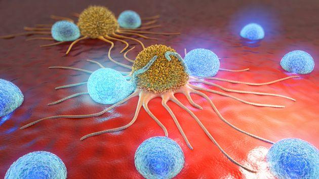 cancer cervical