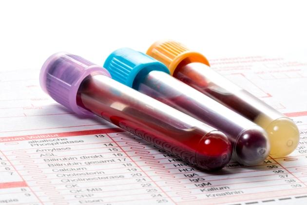 limfocite crescute la copil