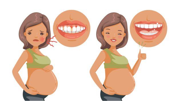 gingivita de sarcina