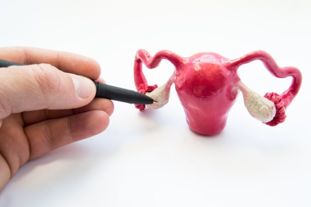 sindromul ovarelor polichistice