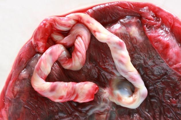 despre placenta