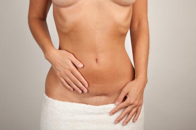 boli cauzate de ovare