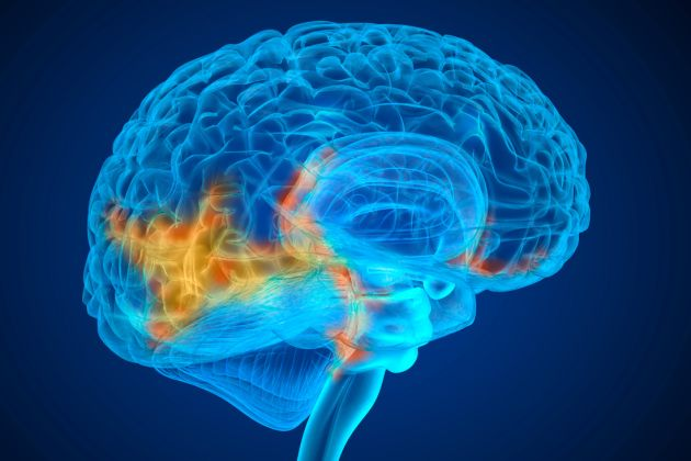 site- ul de dating pentru supraviețuitorii de accident vascular cerebral