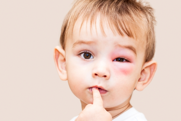 copil agresat la scoala sau la gradinita