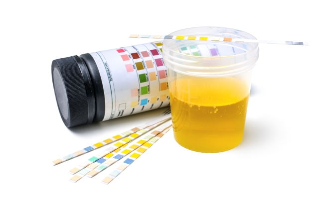culoarea urinei copilului