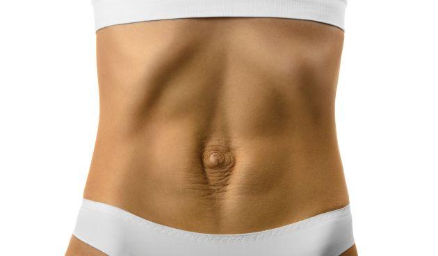 diastazis de muschi abdominal drept