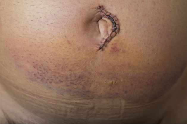 hernia ombilicala dupa sarcina