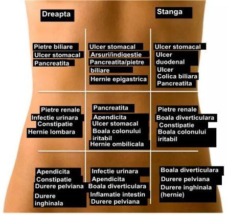 harta durerilor abdominale la copii