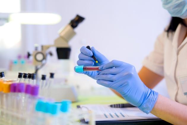 monocite crescute la copil