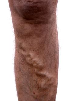 tratament naturist pt varice la picioare