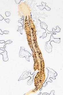 viermisori intestinali