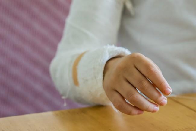 copil cu mana in ghips