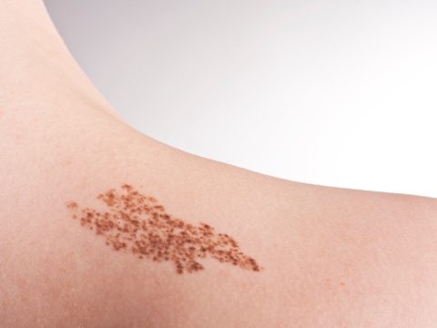 Pata pigmentata bruna