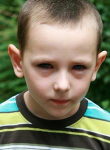 copil cu alergie oculara