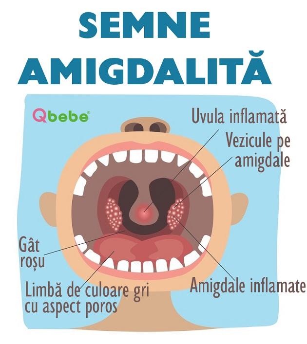 semne amigdalita